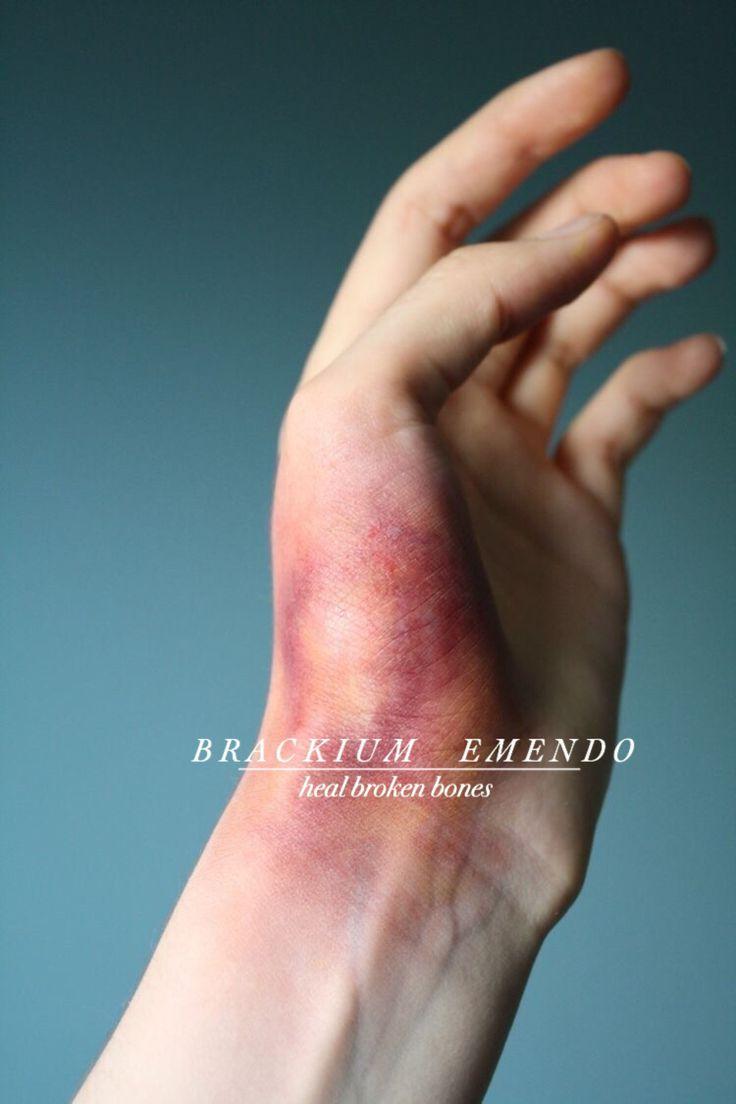 Charms - Heal Broken Bones...>>> To heal broken bones... BROKEN!? THERE'S NO BONES LEFT! (Perfect if your not lockhart)
