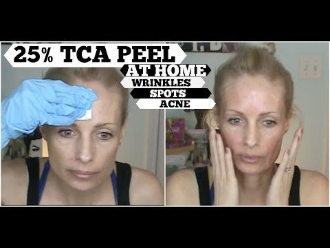 TCA PEEL AT HOME | TCA 25% for sun damage, anti aging and acne. Does it work?