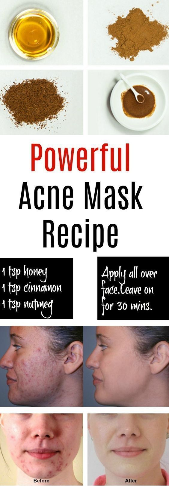 Honig-Zimt-Maske zur Behandlung von Akne #skin_care #skincarepacks