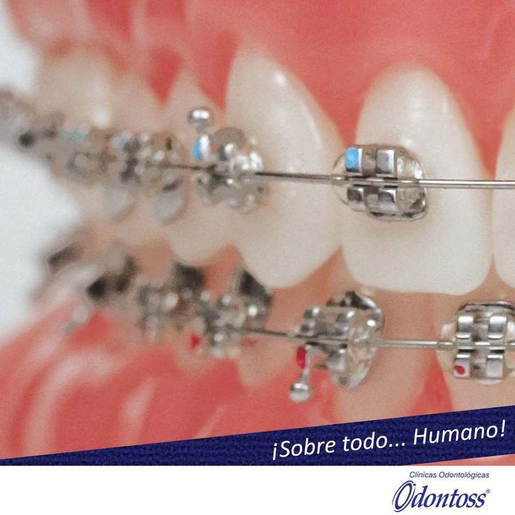 En Odontoss te ayudamos a lucir tu mejor sonrisa con nuestros tratamientos de ortodoncia. Llama y pide tu cita Linea única 444 00 62  Valoración sin costo