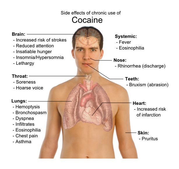Effects of Cocaine Consumption - PositiveMed