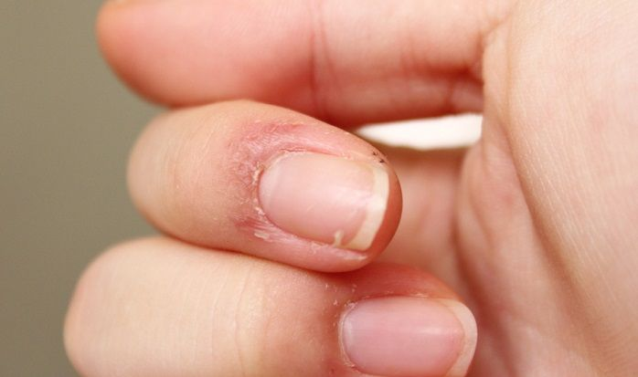 Peeling Skin on Fingers: Why and How to Handle - EnkiVillage