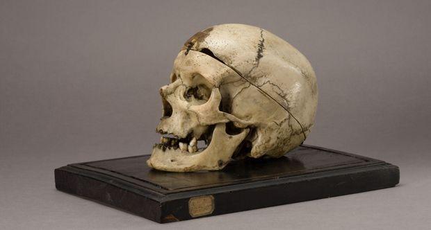 Il cranio della discordia nel Museo Lombroso
