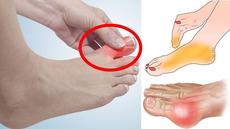 How to Treat a Sore Big Toe | Secret Home Remedies for Ingrown Toenails