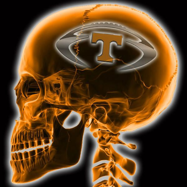 Tennessee Football on the brain.