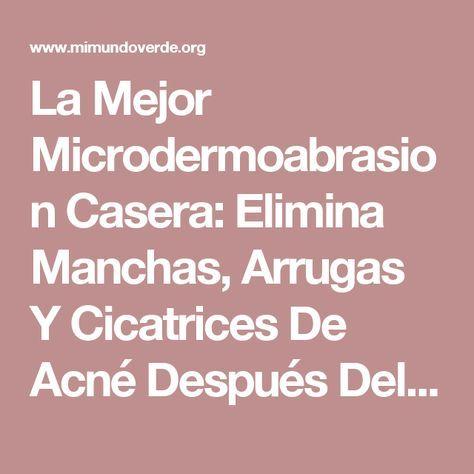 La Mejor Microdermoabrasion Casera: Elimina Manchas, Arrugas Y Cicatrices De Acné Después Del Primer Uso!   Mi Mundo Verde