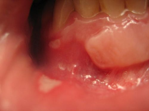 Zilactin B is an non-prescription remedy for mouth sores and canker sores. Look at the review article about Zilactin B to determine if it's worth it. http://hsvtype1.com/zilactin-b.html canker sore and gum graft