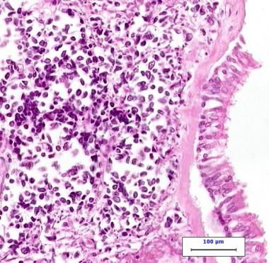 38344tn.jpg (380×371) Small cell lung cancer                                       High-power photomicrograph of small cell carcinoma on the left side of the image with normal ciliated respiratory epithelium on the right side of the image.