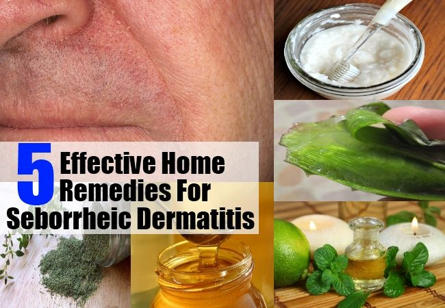 And again home remedies for scalp psoriasis work as a better cure than anything else 2