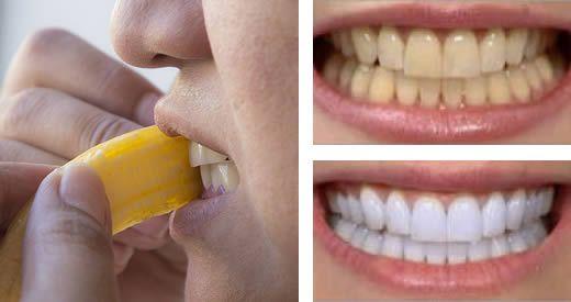 sbiancare denti banana