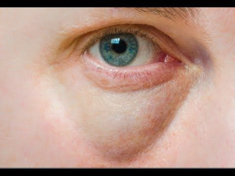 Natural Remedy To Soothe Swollen Eyes