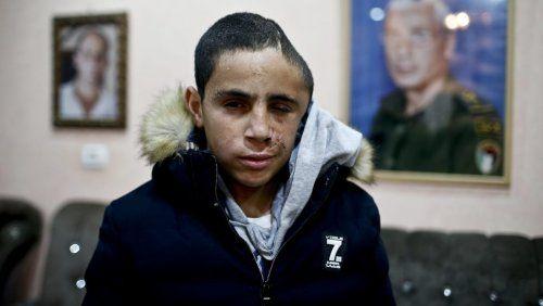 Ils arrêtent Mohammed Tamimi, 15 ans, cousin d'Ahed, après l'avoir défiguré (...) - résultat de la plus grande démocratie du MONDE USA SIONISTES