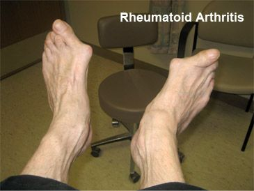 how to lower high uric acid level diet for severe gout how to check uric acid level at home