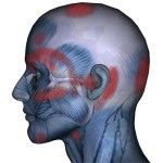 Sternocleidomastoid Muscles: Affects Head, Eyes, Sinus, Ears, Throat, Pain, Dizziness, Whiplash