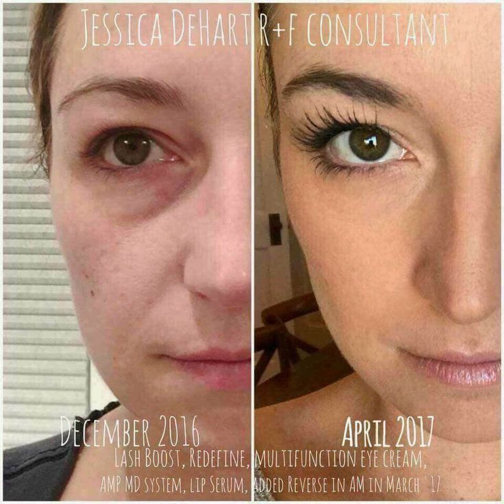 LADH BOOST+REDEFINE Regimen+Eye Cream+Lip Renewing Serum+REVERSE Regimen+AMP MD Roller = life changing results in FOUR MONTHS! What I love about R+F is that our products can be used together to create a personalized regimen! Let's talk today about these products and together we will get you the best skin (and lashes) of your life #RFGlow #RFNumber1PremiumSkinCareCo #LifeChangingSkinCare