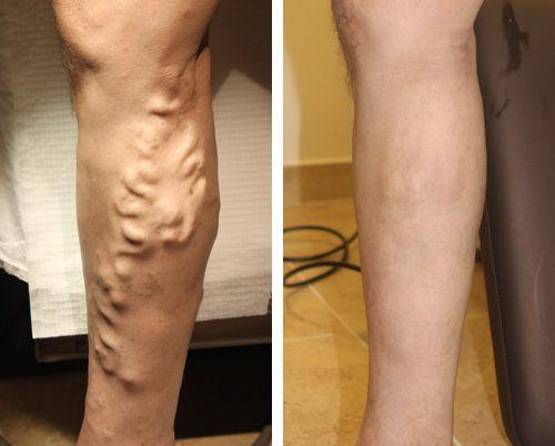 Best #Varicose #Vein Treatment in USA - http://www.usaveinclinics.com/