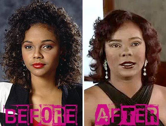 Lark Voorhies Plastic Surgery Before & After - http://plasticsurgerytalks.com/lark-voorhies-plastic-surgery-before-after/