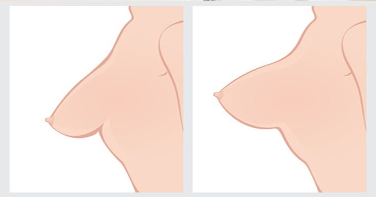The breasts are one of the most common areas to start sagging as woman get older. Though the breasts themselves are made up of fatty tissue and glands, you can tone up the underlying muscles to give your breasts a lift and a perkier shape.