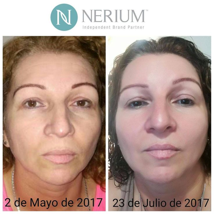 ¡Descubre la ciencia detrás de los productos Nerium!  Solicita tu prueba gratis  MÓNICA MARÍA ESPEJO PÉREZ REPRESENTANTE DE MARCA NERIUM INTERNATIONAL  Cel/WhatsApp: 305 241 76 42 monicaespejo.nerium@gmail.com Instagram: @monicaespejo.nerium Facebook: La juventud en una botella Web: www.monicaespejo.nerium.co
