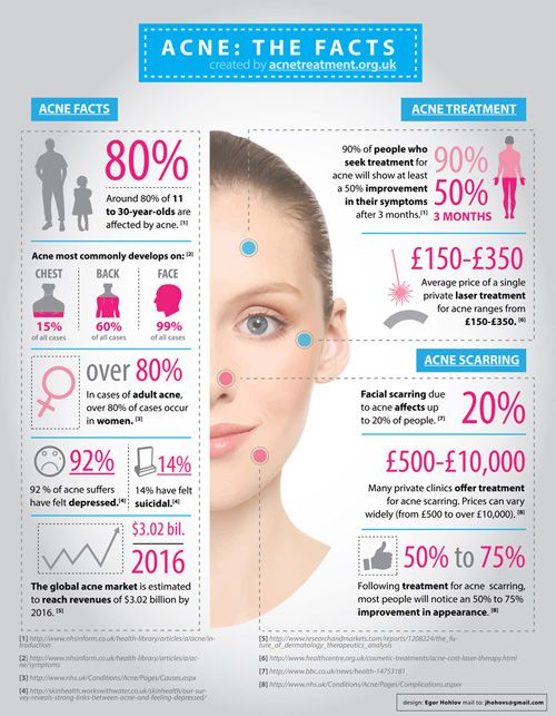 Acne Acne #Facts www.DreamDotsForS......
