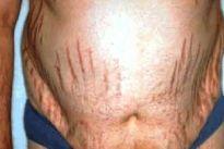 A Síndrome de Cushing é uma doença que ocorre devido à elevada quantidade de cortisol no sangue, causando sintomas como rápido aumento de peso e acúmulo de gordura na região abdominal e face
