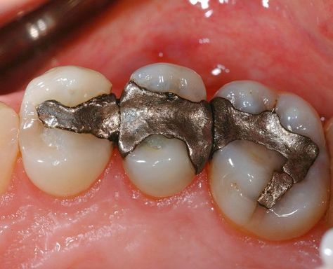 Dental fillings with mercury can cause over 30 chronic health conditions