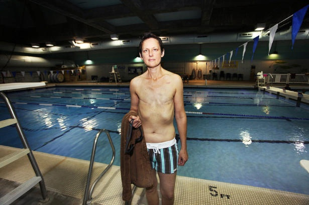 Breast cancer survivor wins right to swim topless in Seattle: Feminist Killjoys, Breast Cancer Survivor, Survivor Win, Swim Pools, Cancer Suck, Swim Topless, Seattle Public, Public Pools, News Stories
