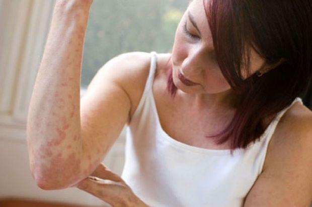 Egzama İçin Doğal ÇayEgzama deriye kötü görüntü veren bir deri hastalığıdır. Genellikle alerji sebebi ile görülse de psikolojik rahatsızlıklar sonucunda da ortaya çıkabilir. Tedavisi çok zor olmayan bu rahatsızlık için tarih boyunca bitkisel tedavi kullanılmıştır.