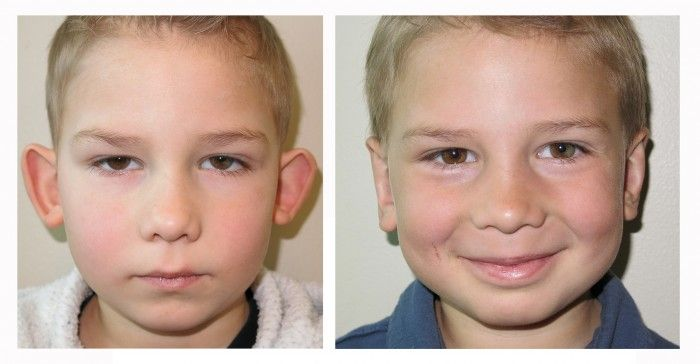 Otoplasty (ear-pinning) Surgery for children and adults