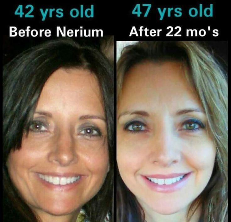 Amazing what Nerium can do! http://www.yathink.nerium.com