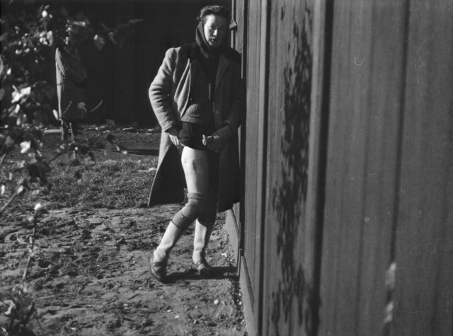 "Clandestine photograph of  medical experimentation victim Bogumila Babinska in the Ravensbrueck concentration camp. She was one of 74 ""Rabbits"" chosen for sadistic medical experimentation. Doctors cut her thigh muscles and cut into her shin bone, crippling and almost killing her.  Despite this, she was forced on a death march with other inmates beginning April 28, 1945.  She walked from Northern Germany to her home in Warsaw and survived the war.  She died in 1980."