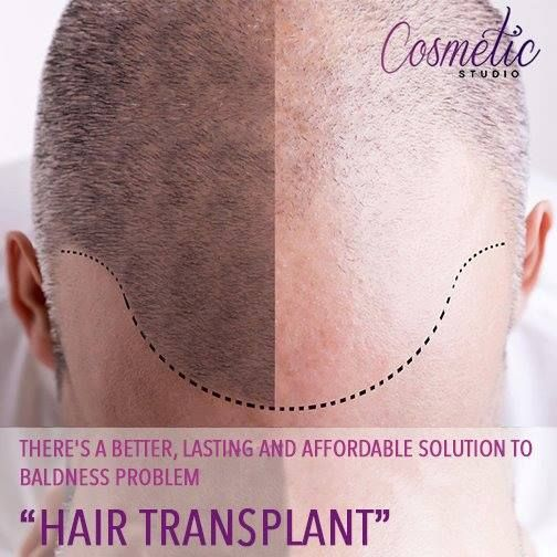 Suffering from hair loss is not a nice thing especially at a young age,then comes the challenge of how one needs to get the hair back, the obvious choice is lots of options one finds online.