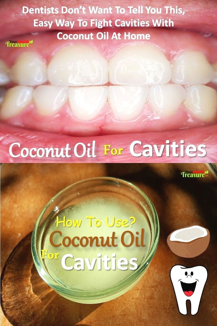 Coconut oil for cavities heal cavities with coconut oil
