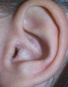 mild case of otitis externa