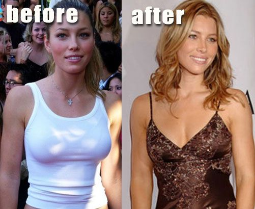 Paulina Gretzky Before And After Jessica Biel Before