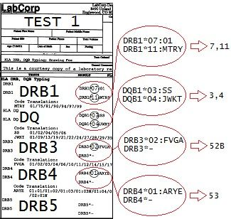 HLA DR 11-3-52B can make you vulnerable to Gardasil injury