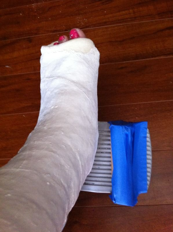 How to survive a broken foot.