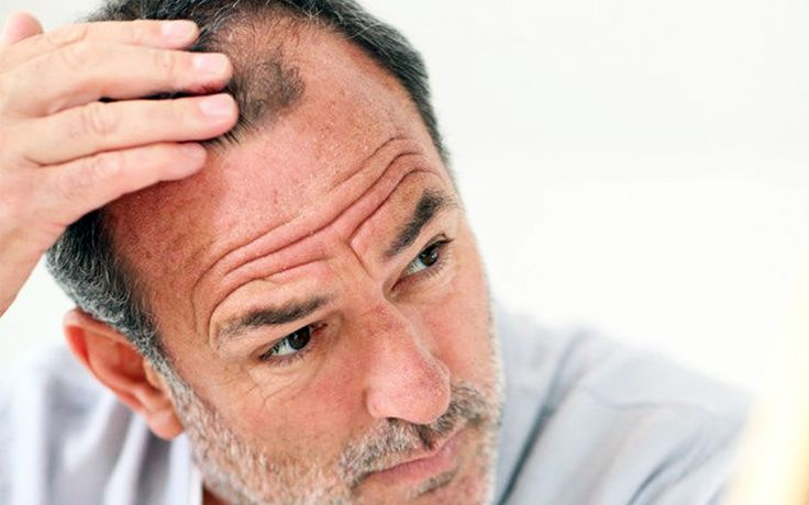 Various Common Genre Of FUE Hair Transplant FAQ - http://www.hairtransplantturkey.co/wp-content/uploads/2015/06/fue-hair-transplant-treatment.jpg