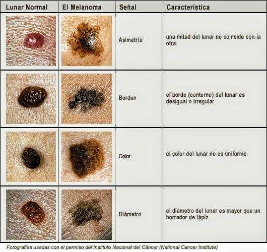 Pregnancy moles