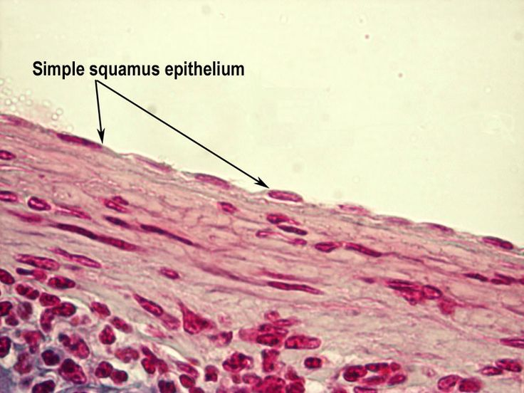 simple squamous epithelium - Google Search