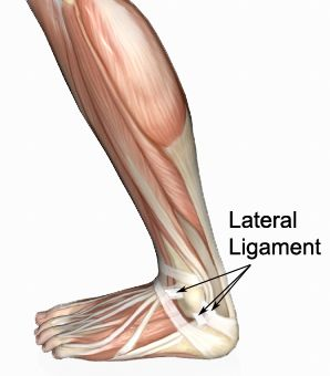 Treating a sprained ankle the RIGHT way early, means a stronger ankle and faster recovery. See effective self treatment and the best rehab exercises: