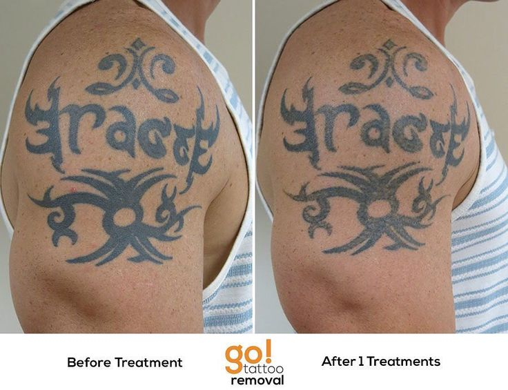 17 best images about tattoo removal in progress on for How long does it take for a tattoo to fade