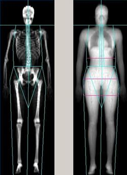 When older women are told that their bones should be as dense as a young adult (30 year old) at peak bone mass, things can and DO go terribly wrong...
