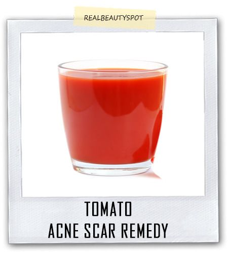 More than five acne & scar remedies-Tomatoes or Tomato pulp acne scar remedy