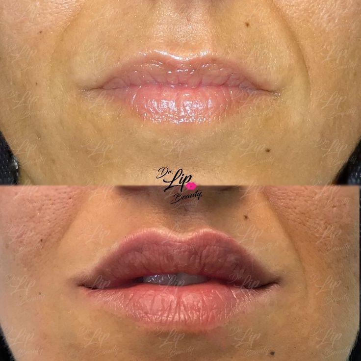 💋TOUCH LIP© | 🖇 Ridefinizione delle LABBRA con FILLER.  💎 Aumento del labbro superiore con evidenza dell'arco di cupido. Aumento in definizione del labbro inferiore con attenzione alla stondatura dei bordi. Stondatura verso l'alto delle commissure per rendere più armoniosa la forma finale. 💎  🎗#LABBRAdiCLASSE🎗 | Filler Labbra Acido Ialuronico | #eleganza #lipclass #labbranaturali #bellezzasicura