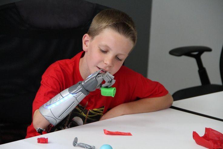 jedi logan from open bionics fb