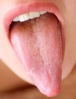 Tongue: What Your Tongue Is Telling You About Your Digestion