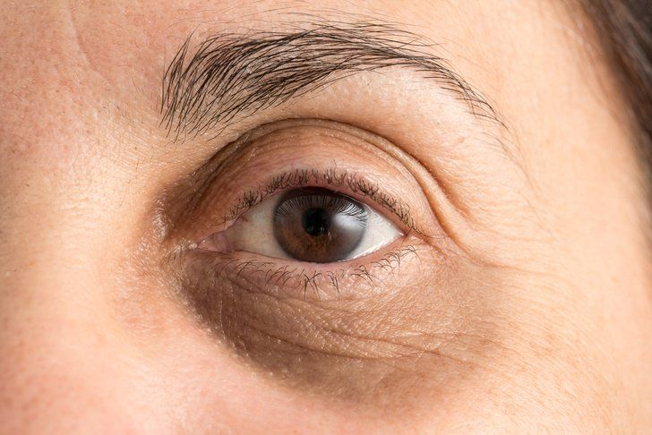 Puffy, discolored skin above and beneath the eye can make you appear tired and sleep deprived, even when you're well rested. Known medically as periorbital dark circles, this area of the eye is particularly susceptible to changes to skin tone since the flesh around the eyes is very thin. With a depth of about 0.5 …