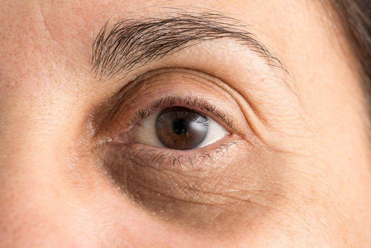 10 Natural Ways To Get Rid Of Dark Circles Under Eyes