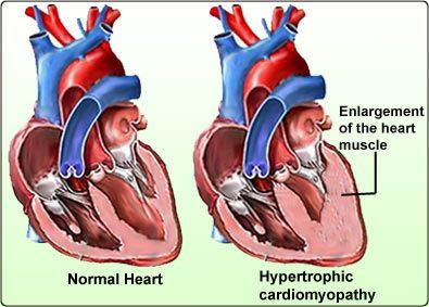 Very good depiction of Hypertrophic Cardiomyopathy